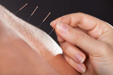 Servicio de acunpuntura en Bilbao